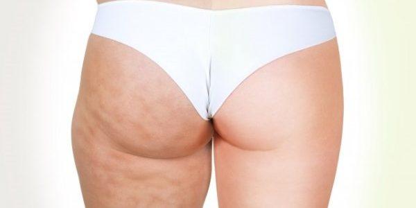 L'appareil anti-cellulite : une solution efficace pour lutter contre la peau d'orange et les capitons ?